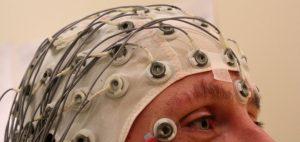 mozg-ptsd-leczenie-ptsd-znane-terapie-terapia-alternatywna-marihuana-medyczna
